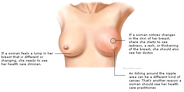 Symptoms_Of_Breast_Cancer_In_Females-3