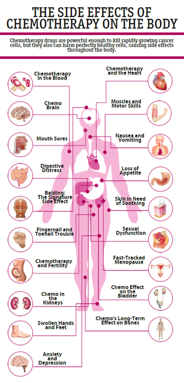chemotherapy-infographic
